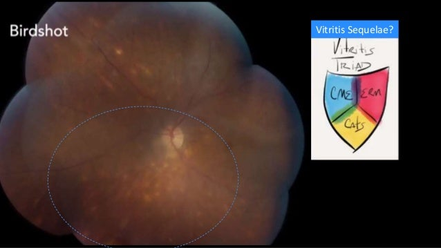 Acute Posterior Multifocal Placoid Pigment Epitheliopathy (APMPPE) 50% have prodromal illness Symptoms: BOV, Scotomata, Ph...