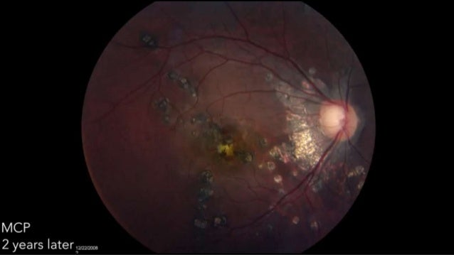 Shows spots that are more numerous than FA/Examination ICGA FINDINGS: MULTIPLE EVANESCENT WHITE DOT SYNDROME
