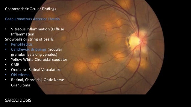 Difficult DX.. CALLED OCCULT FOR A REASON Acute zonal occult outer retinopathy (AZOOR) Symptoms: Unilateral Photopsias, Va...