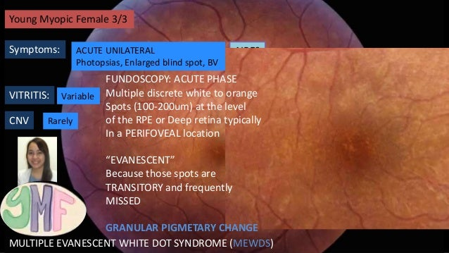 WHITE DOT SYNDROMES Acute Zonal Occult Outer Retinopathy (AZOOR) Multifocal Choroiditis and Panuveitis (MCP) Multiple Evan...