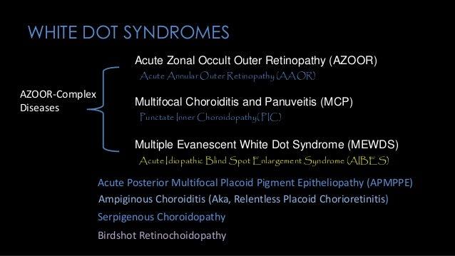 Chorioretinopathies of Unknown Etiology (WhiteDots)
