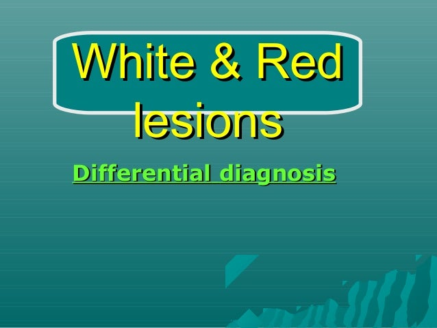White & Red lesions Differential diagnosis