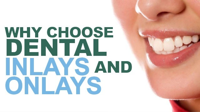 A dental onlay or an inlay is a way to give structure back to the tooth without performing a dental implant. Or performing...