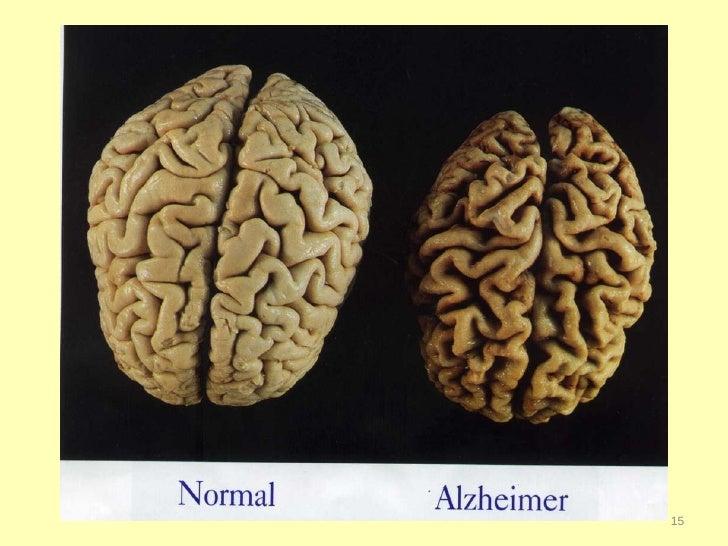 Teepa Snow, Dementia Expert, on understanding Alzheimers patient beha…
