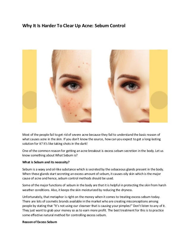 Why it is harder to clear up acne sebum control
