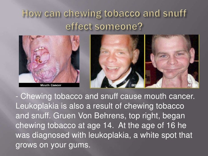 Why should cigarettes and tobacco be illegal