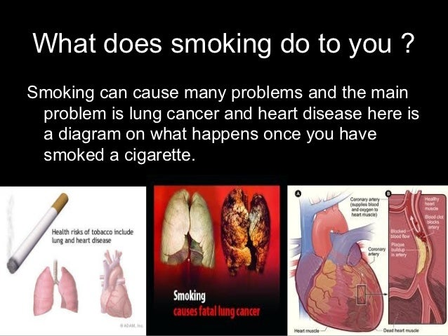 Cigarettes should be banned