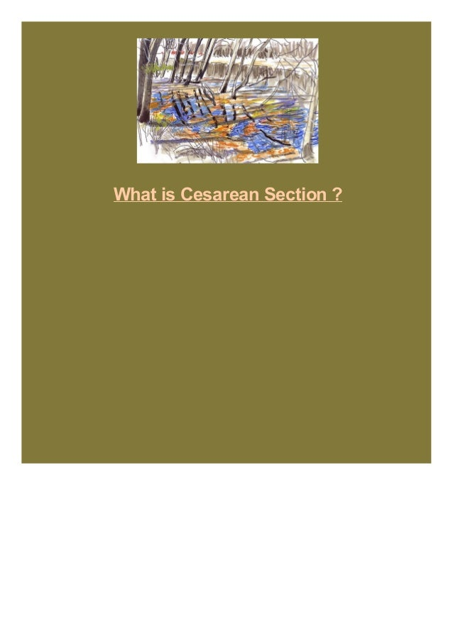 What is Cesarean Section ?