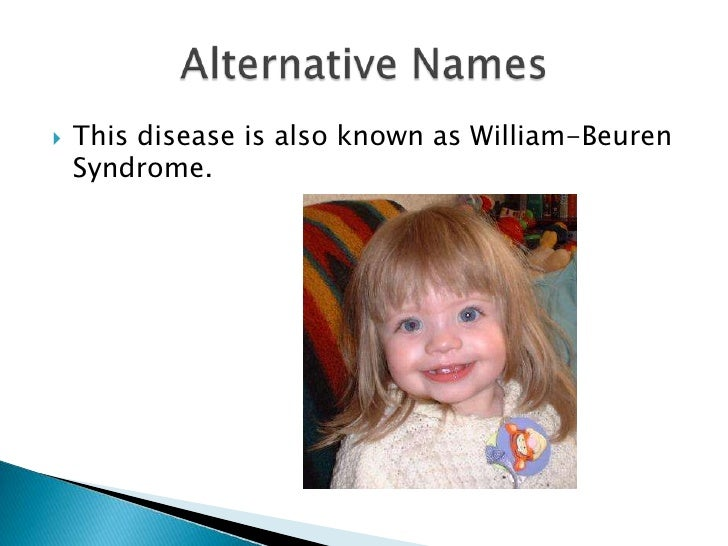 a discussion on williams syndrome Williams syndrome is a rare genetic multisystemic neurodevelopmental disorder  characterized by a distinct facial appearance, cardiac anomalies (most.