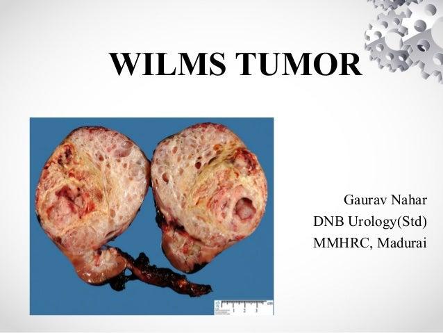 WILMS TUMOR Gaurav Nahar DNB Urology(Std) MMHRC, Madurai
