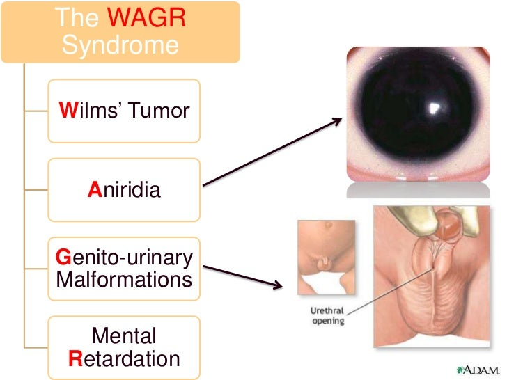 wagr syndrome In a report of a cohort of 61 patients with wagr syndrome, the oldest patient in  whom wilms tumor developed was aged 7 years 3 months.