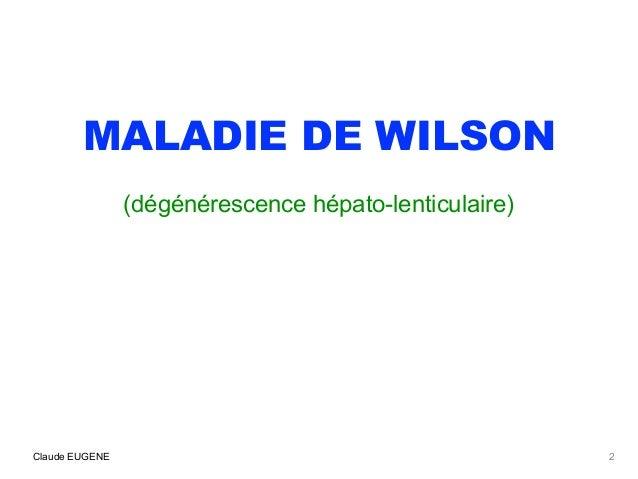 Maladie de Wilson (signes, diagnostic, traitement) Slide 2