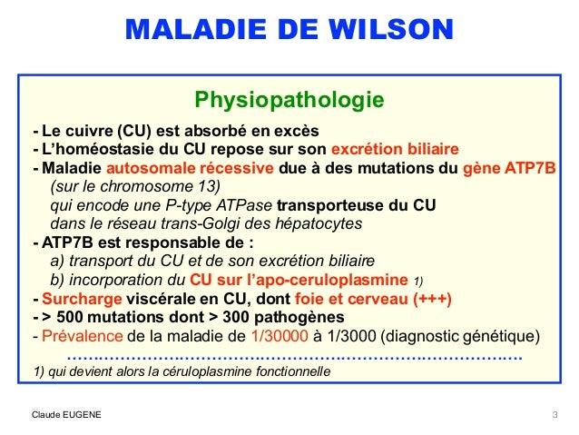Maladie de Wilson (signes, diagnostic, traitement) Slide 3