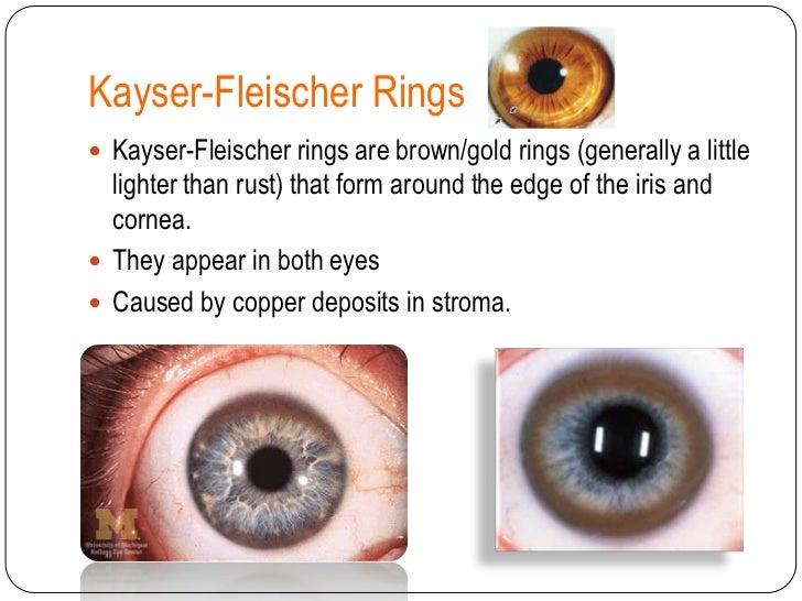 Brown Ring Around Iris Disease Best Ring 2017