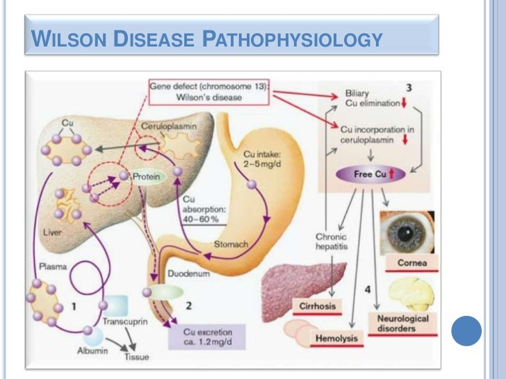 wilsons disease Wilson disease is an inherited condition that causes the body to retain excess  copper the liver of a person who has wilson's disease does not release copper .