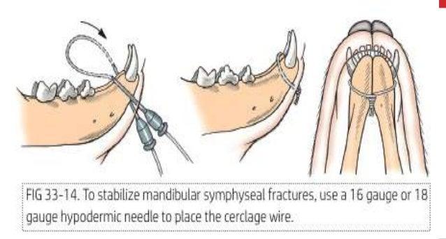 Wiring of-mandible