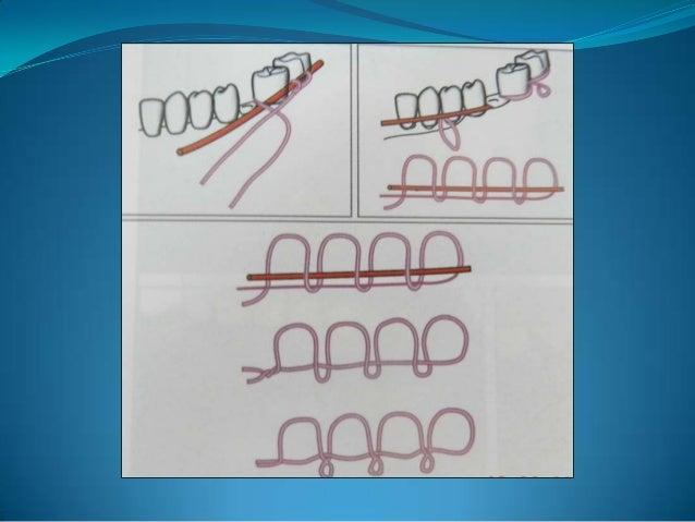 CIRCUMMANDIBULAR WIRINGOBWEGESER'S PROCEDUREIt is used for fixation of lateral compression splint to the mandibularbone....