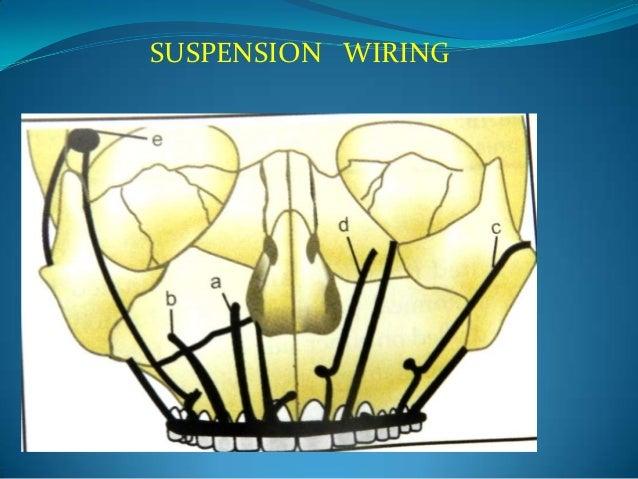 Wiring techniques in maxillofacial surgery
