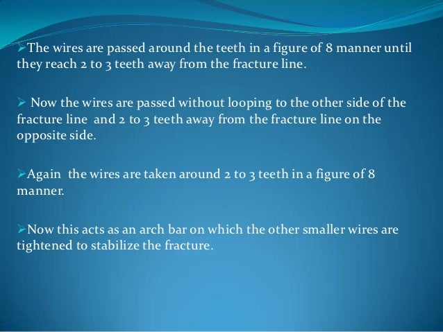The same procedure is carried out for all the chosen teeth in theindividual arches.Then the mandibular wires are twisted...