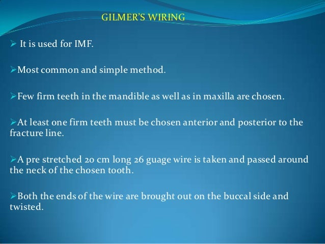Excellent Wiring Techniques In Maxillofacial Surgery Wiring Cloud Hisonuggs Outletorg