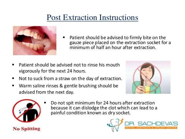 Wisdom Tooth Removal Oral Surgery Delhi
