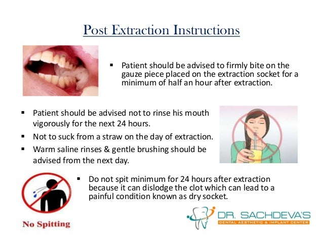 instructions after tooth extraction