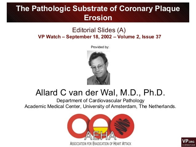 Editorial Slides (A) VP Watch – September 18, 2002 – Volume 2, Issue 37 The Pathologic Substrate of Coronary Plaque Erosio...