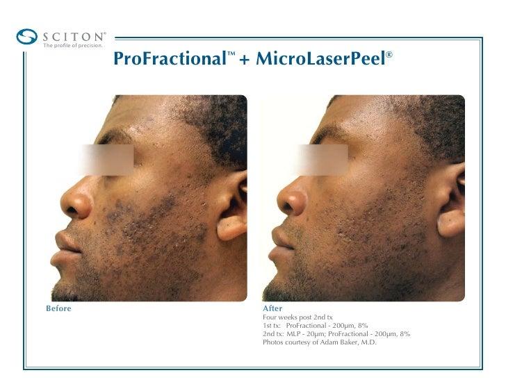 Acne Scar Removal Breakthrough Pro Fractional Laser V2