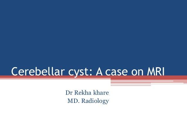 Cerebellar cyst: A case on MRI Dr Rekha khare MD. Radiology