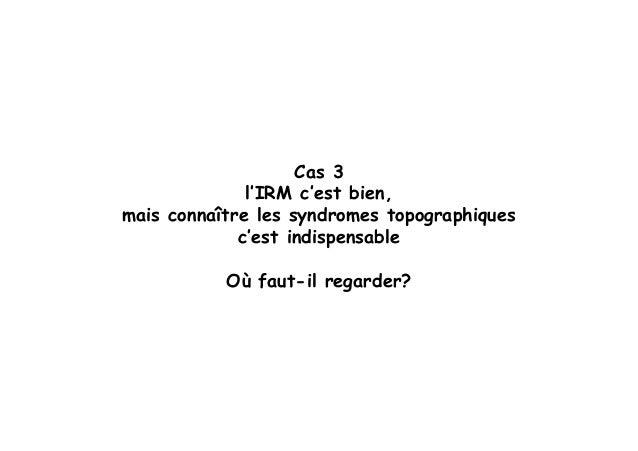 Sémiologie des AIT (3)  Slide 2