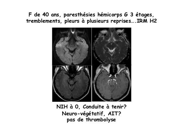 Sémiologie des AIT (3)  Slide 3