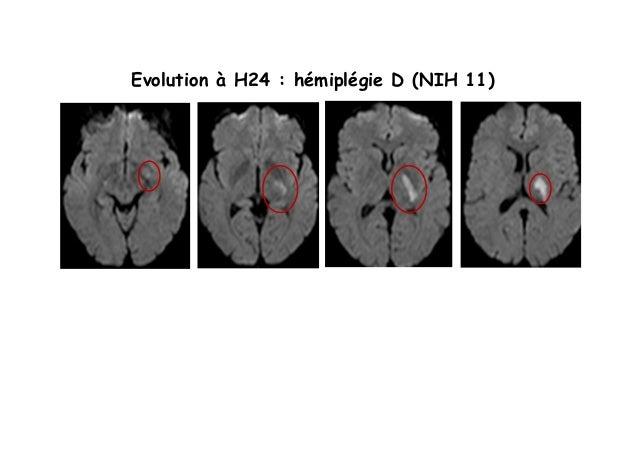Evolution à H24 : hémiplégie D (NIH 11)