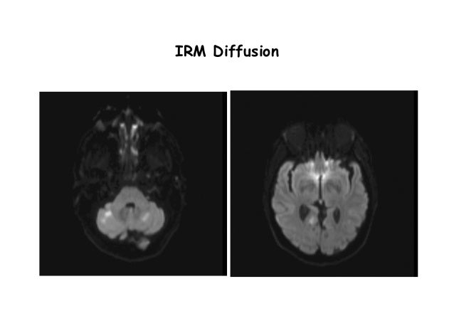 IRM Diffusion