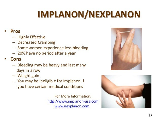 how to lose weight on nexplanon