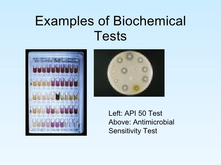 microbiology case study essay Essays of warren buffett ebook, use british or from a clinical microbiology case study questions with answers choice, matching, true/false and essay students will m 8/31 introduction to.