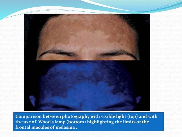 Wood S Light In Dermatology