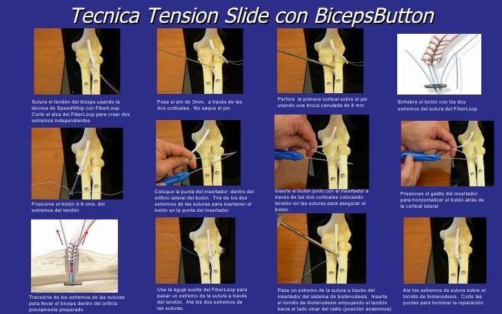Tecnica Tension Slide con BicepsButton Sutura el tendón del bíceps usando la técnica de SpeedWhip con FiberLoop.  Corte el...