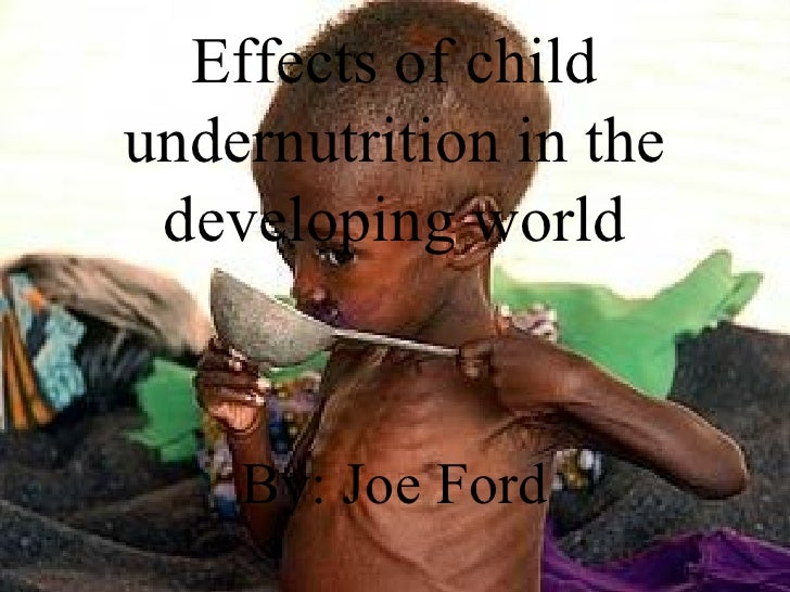 Effects of child undernutrition in the developing world By: Joe Ford