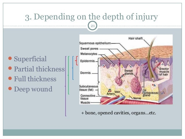 Recognition and management of wound infections