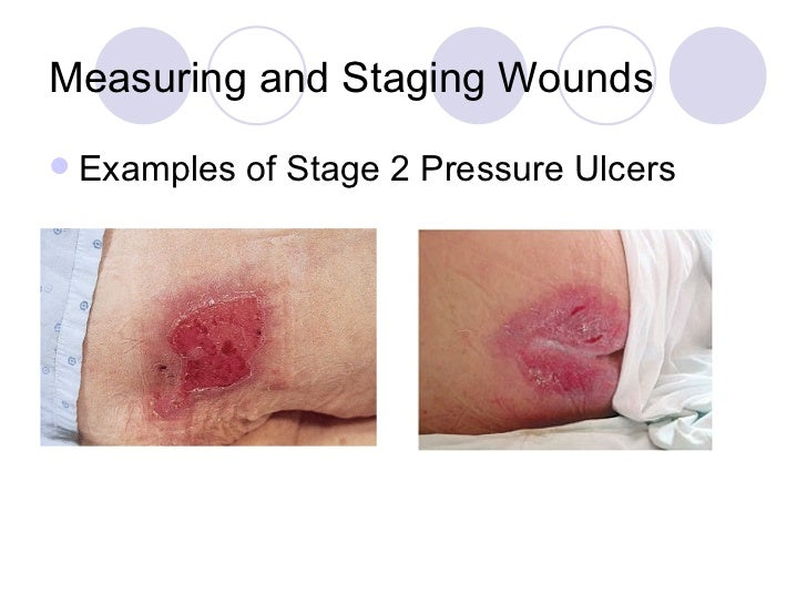 Wound Measuring And Staging Inservice