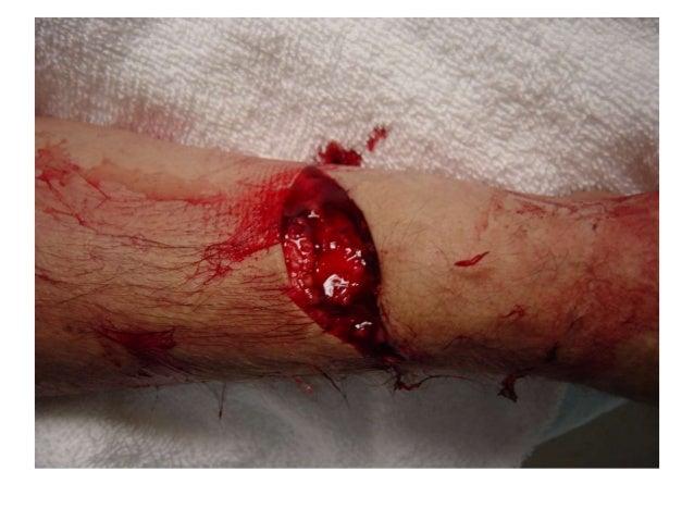 wound presentation