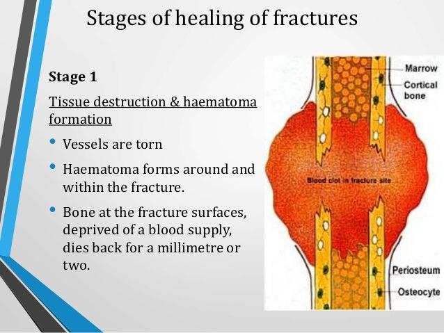 Wound and Bone healing