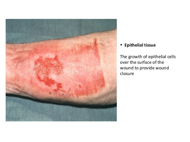 wound assessment and products
