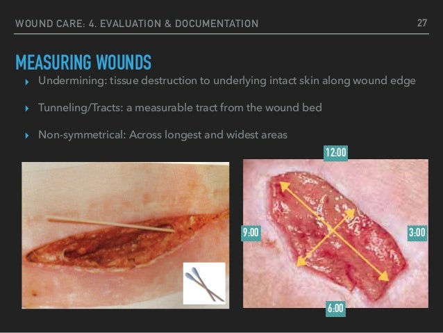 how to clean a surgical wound