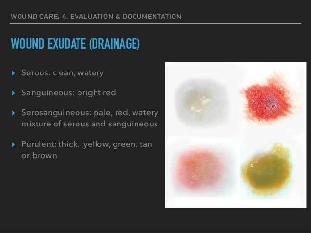 What Color Is Serous Drainage furthermore Sanguineous Drainage as well How To Assess Wound Exudate Vol3 No2 as well Sanguineous Drainage as well 437764026250582433. on serous vs serosanguinous