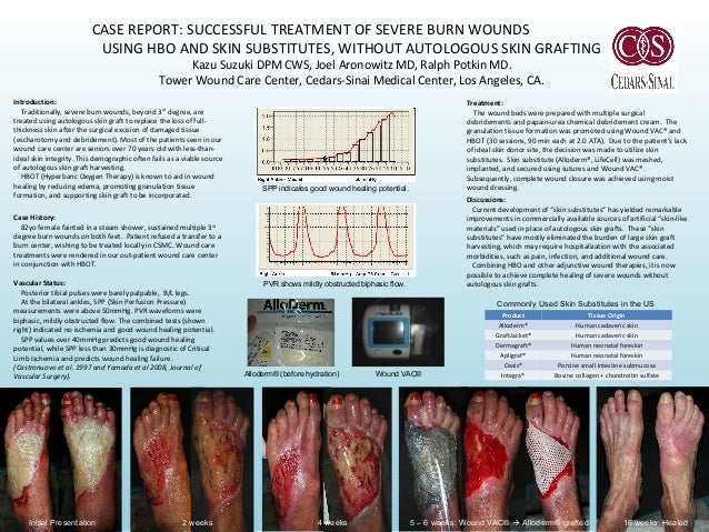 CASE REPORT: SUCCESSFUL TREATMENT OF SEVERE BURN WOUNDS USING HBO AND SKIN SUBSTITUTES, WITHOUT AUTOLOGOUS SKIN GRAFTING K...