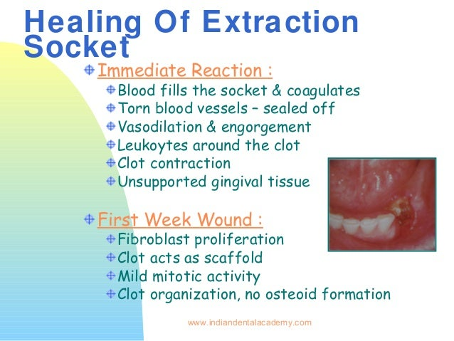Wound Healing Certified Fixed Orthodontic Courses By Indian Dental Ac