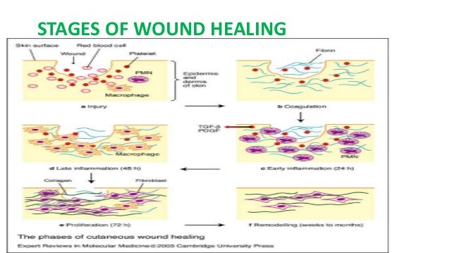 Images of Phases Of Wound Healing - #rock-cafe