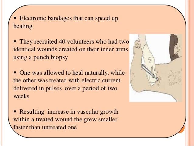 Wound healing Technology