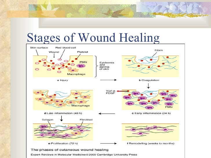 Wound Healing & Wound Care